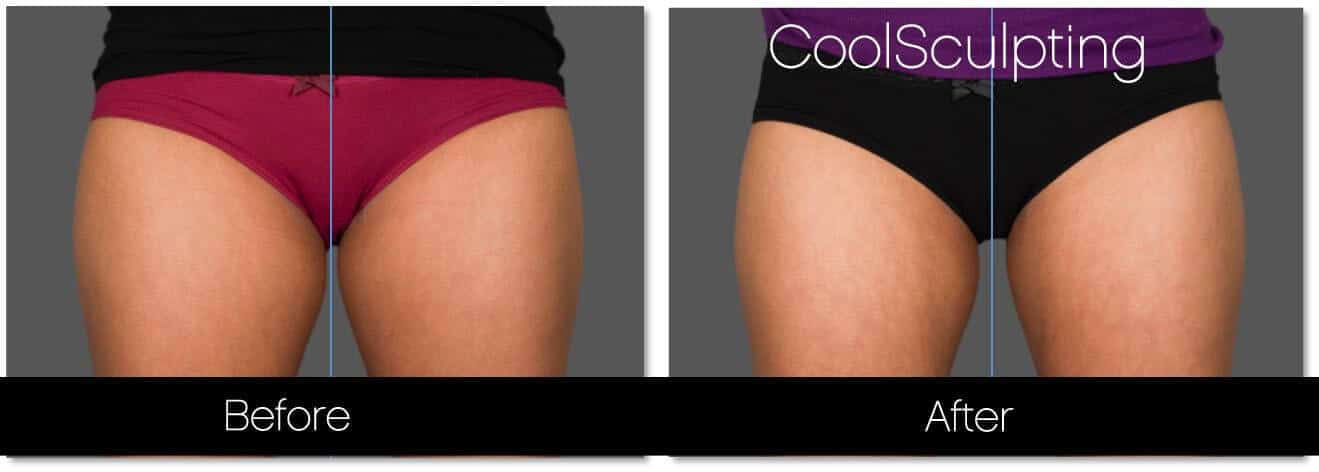 CoolSculpting - Before and After Gallery – Photo 53