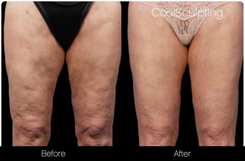 CoolSculpting - Before and After Gallery – Photo 54