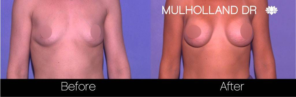 Breast Augmentation - Before and After Gallery – Photo 61