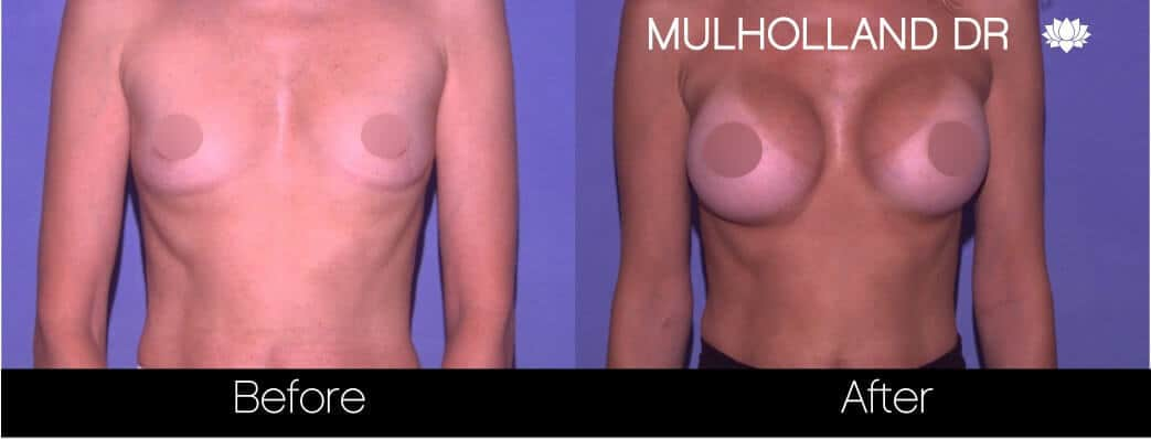 Breast Augmentation - Before and After Gallery – Photo 69
