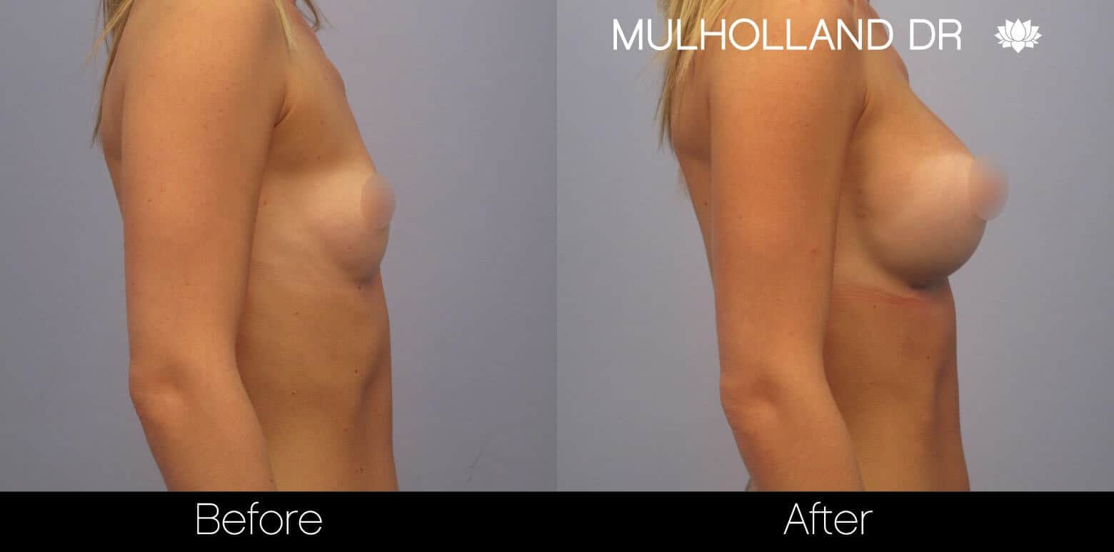 Breast Augmentation - Before and After Gallery – Photo 6