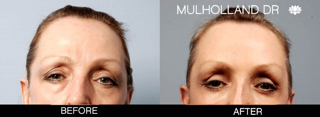 Blepharoplasty - Before and After Gallery – Photo 6