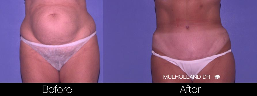 Tummy Tuck - Before and After Gallery – Photo 22