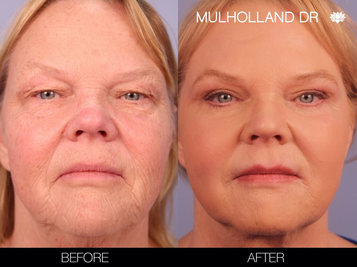 Fractora - Before and After Gallery – Photo 35