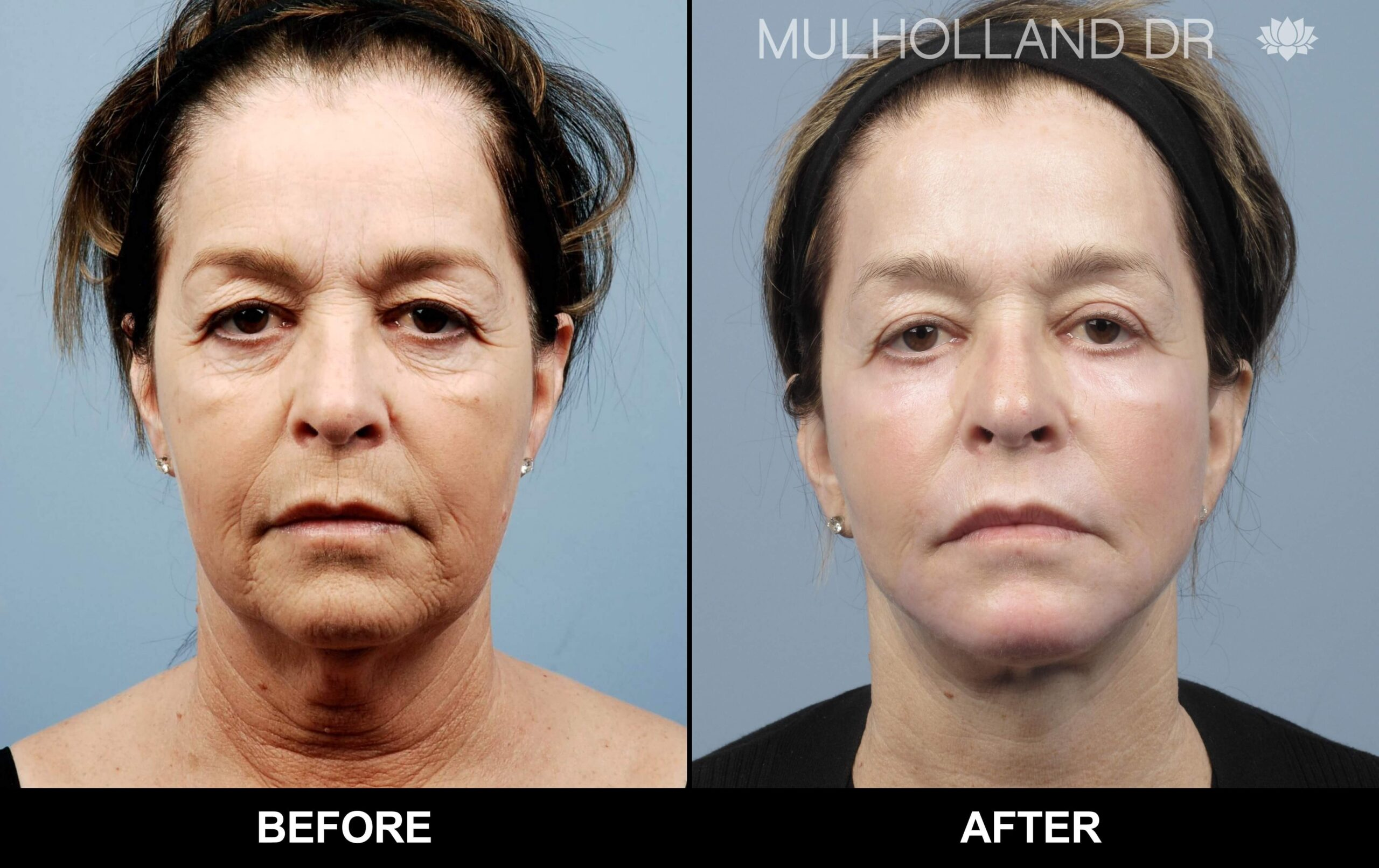 Fractora - Before and After Gallery – Photo 47