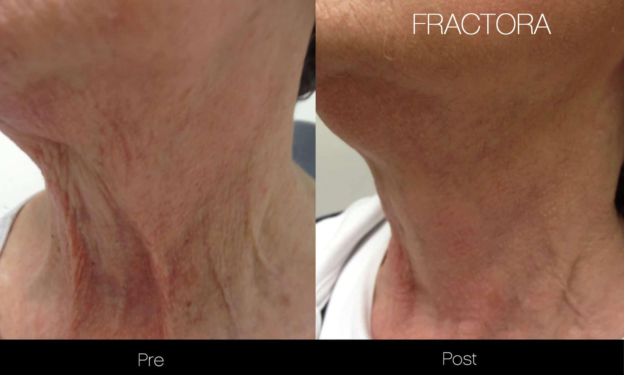 Fractora - Before and After Gallery – Photo 24