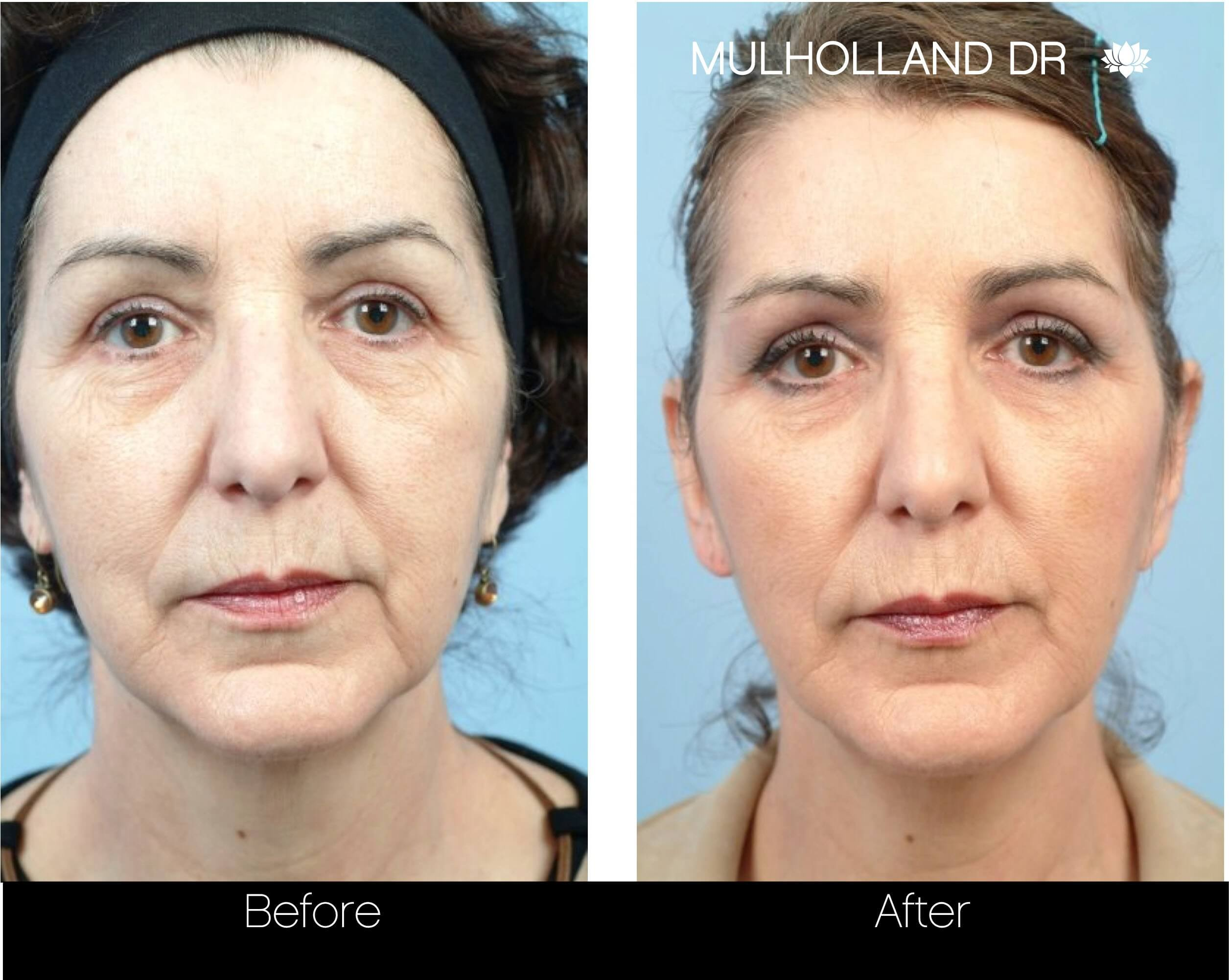 Fractora - Before and After Gallery – Photo 85