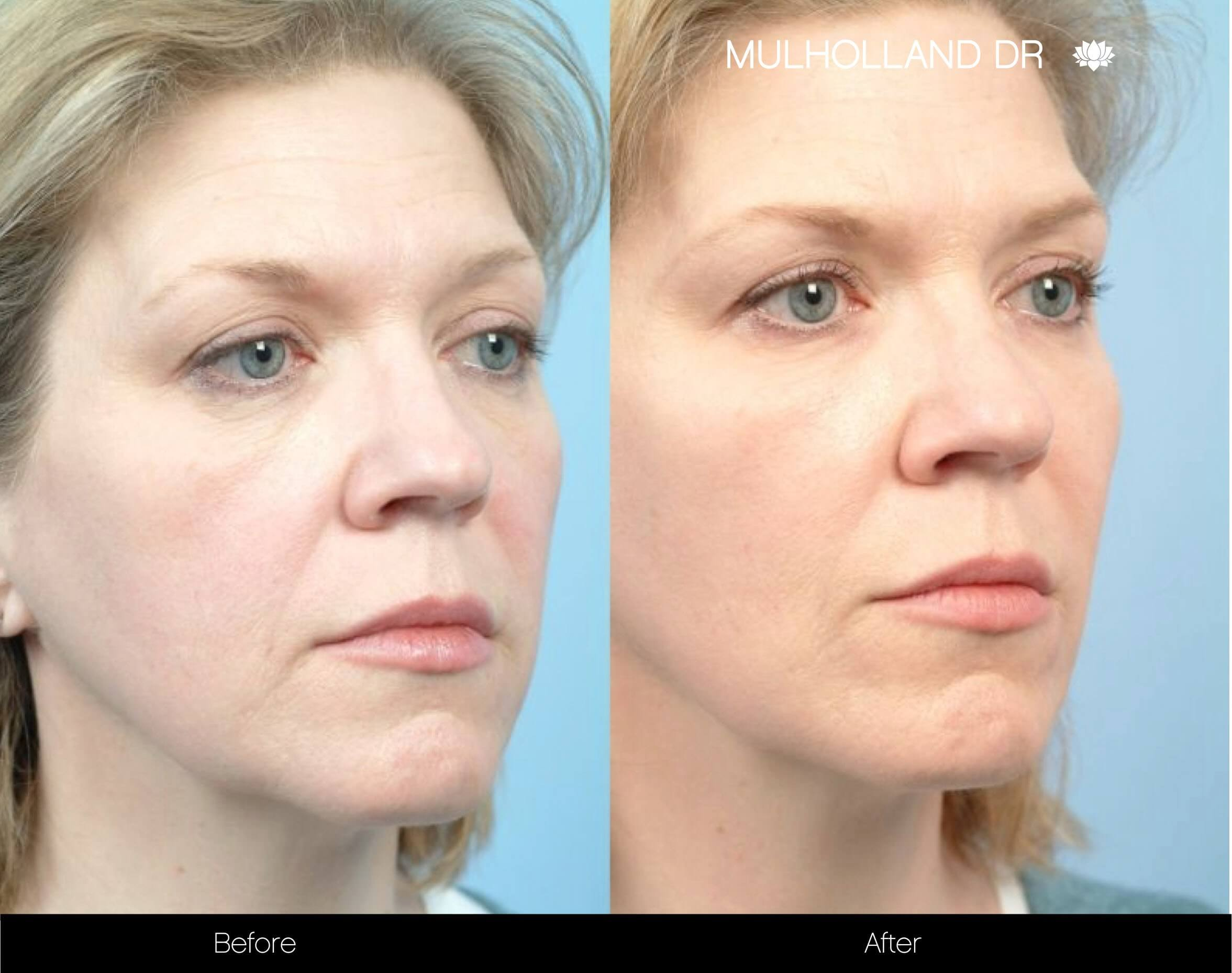 Fractora - Before and After Gallery – Photo 87
