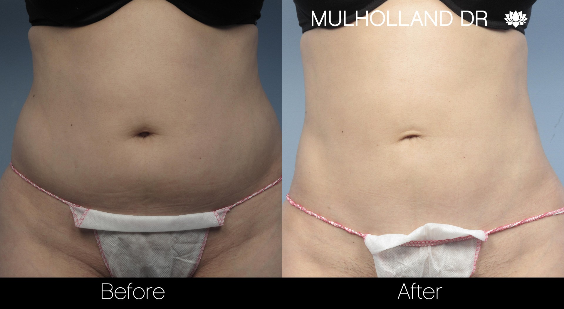 Liposuction - Before and After Gallery – Photo 20