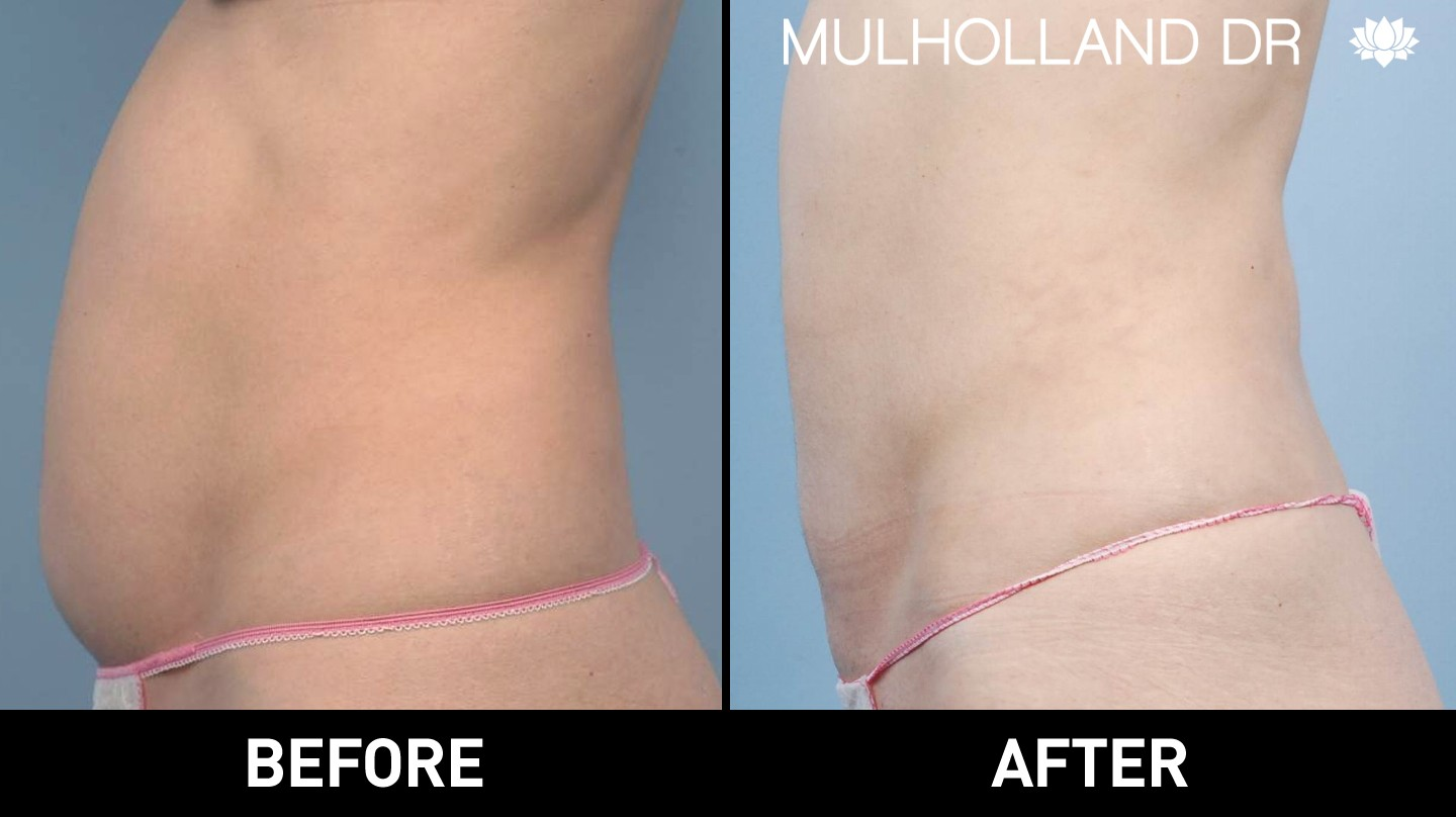 Liposuction - Before and After Gallery – Photo 24
