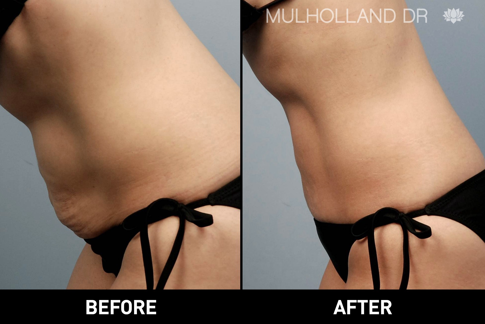Liposuction - Before and After Gallery – Photo 25