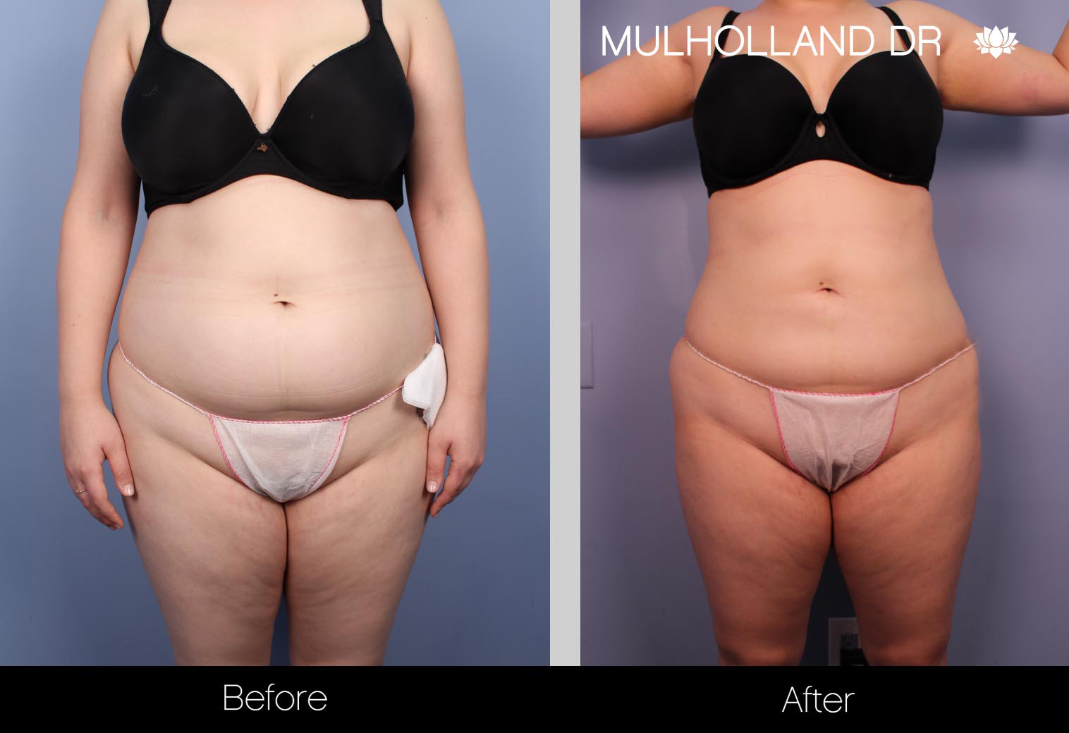 Liposuction - Before and After Gallery – Photo 28