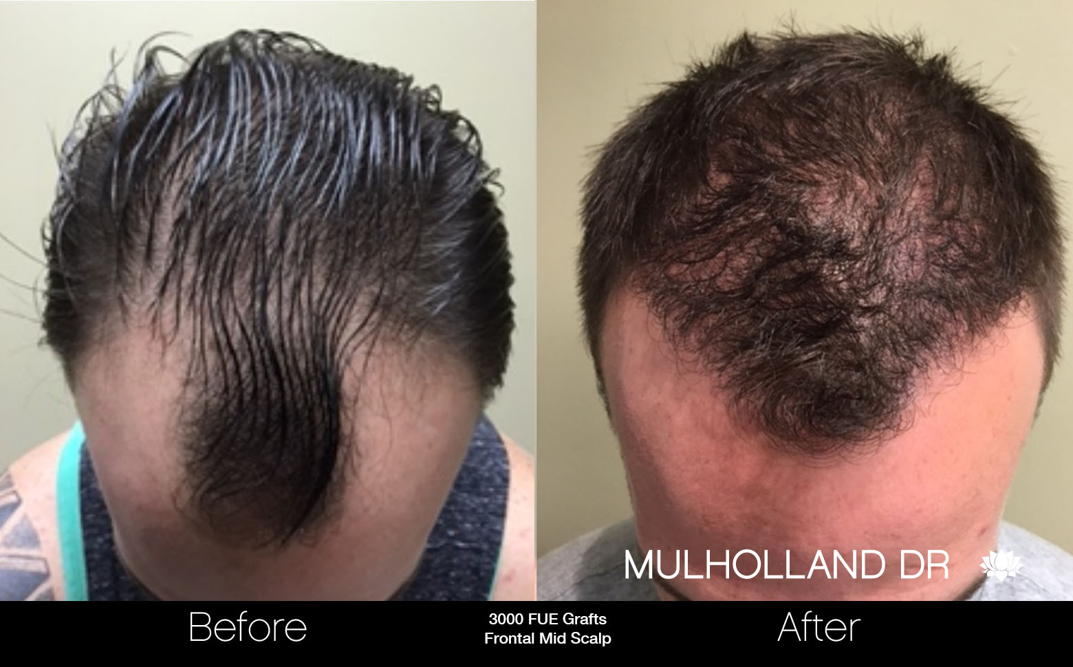 FUE Hair Male - Before and After Gallery – Photo 28