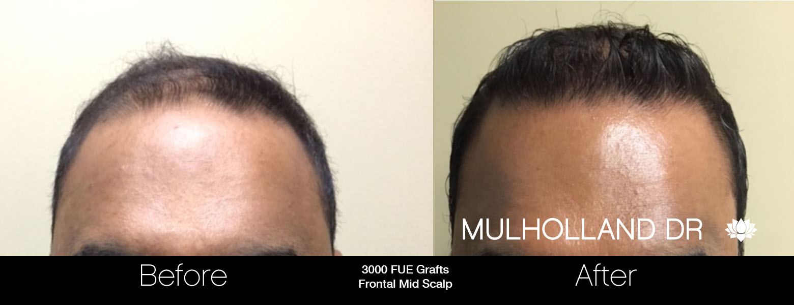 FUE Hair Male - Before and After Gallery – Photo 30