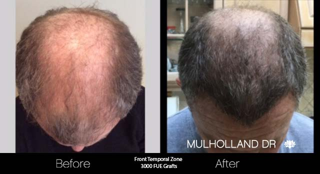FUE Hair Male - Before and After Gallery – Photo 39