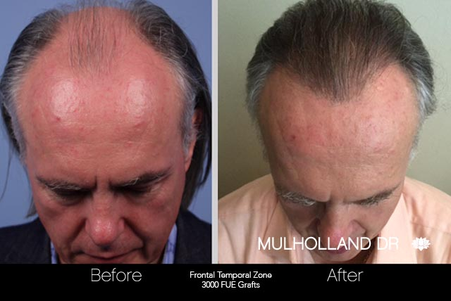 FUE Hair Male - Before and After Gallery – Photo 41
