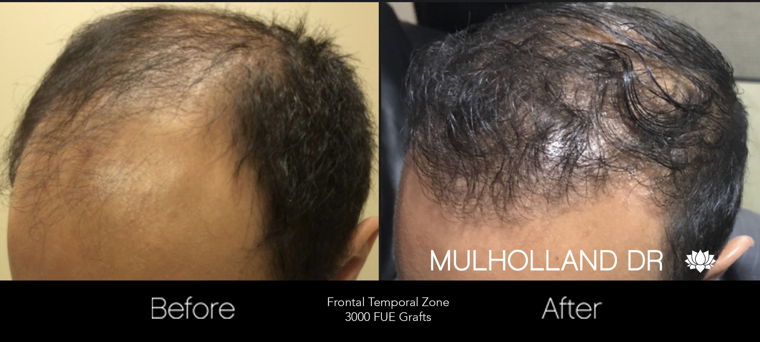 FUE Hair Male - Before and After Gallery – Photo 45