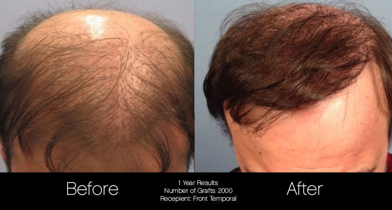 FUE Hair Male - Before and After Gallery – Photo 46