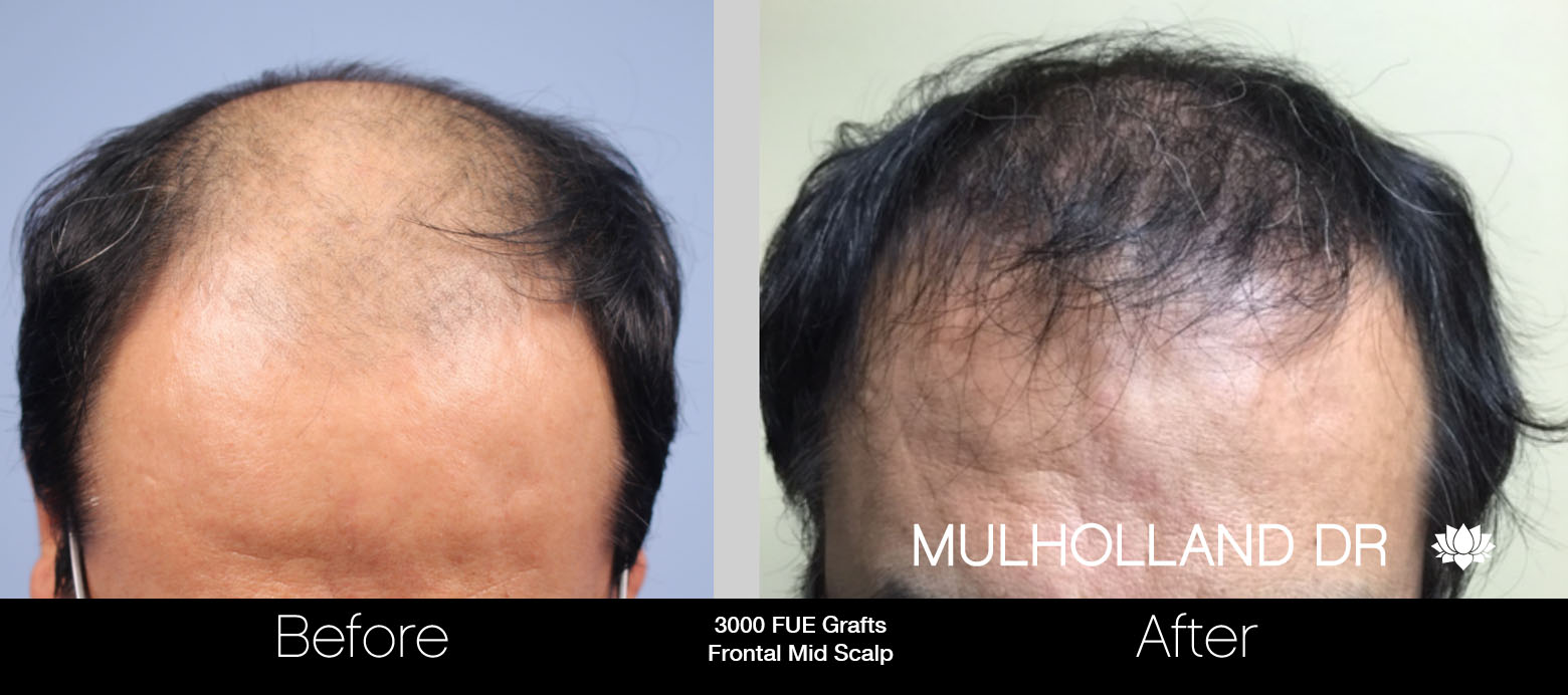 FUE Hair Male - Before and After Gallery – Photo 47