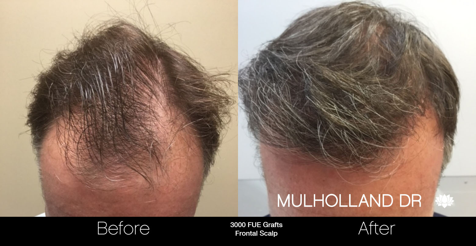 FUE Hair Male - Before and After Gallery – Photo 60