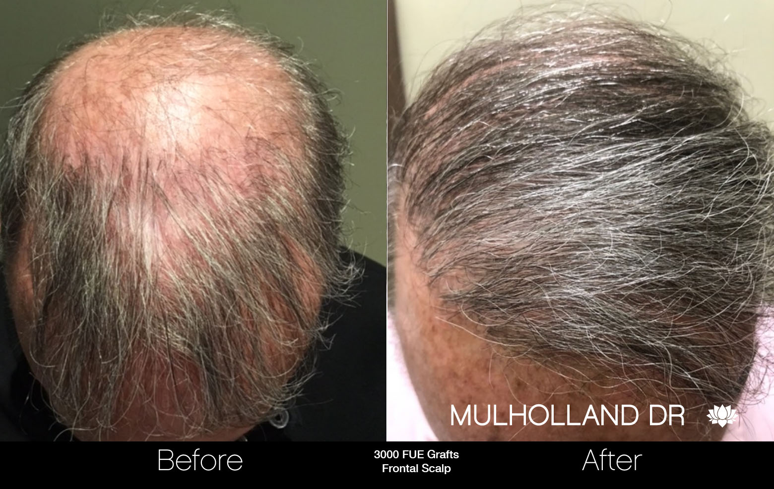 FUE Hair Male - Before and After Gallery – Photo 71