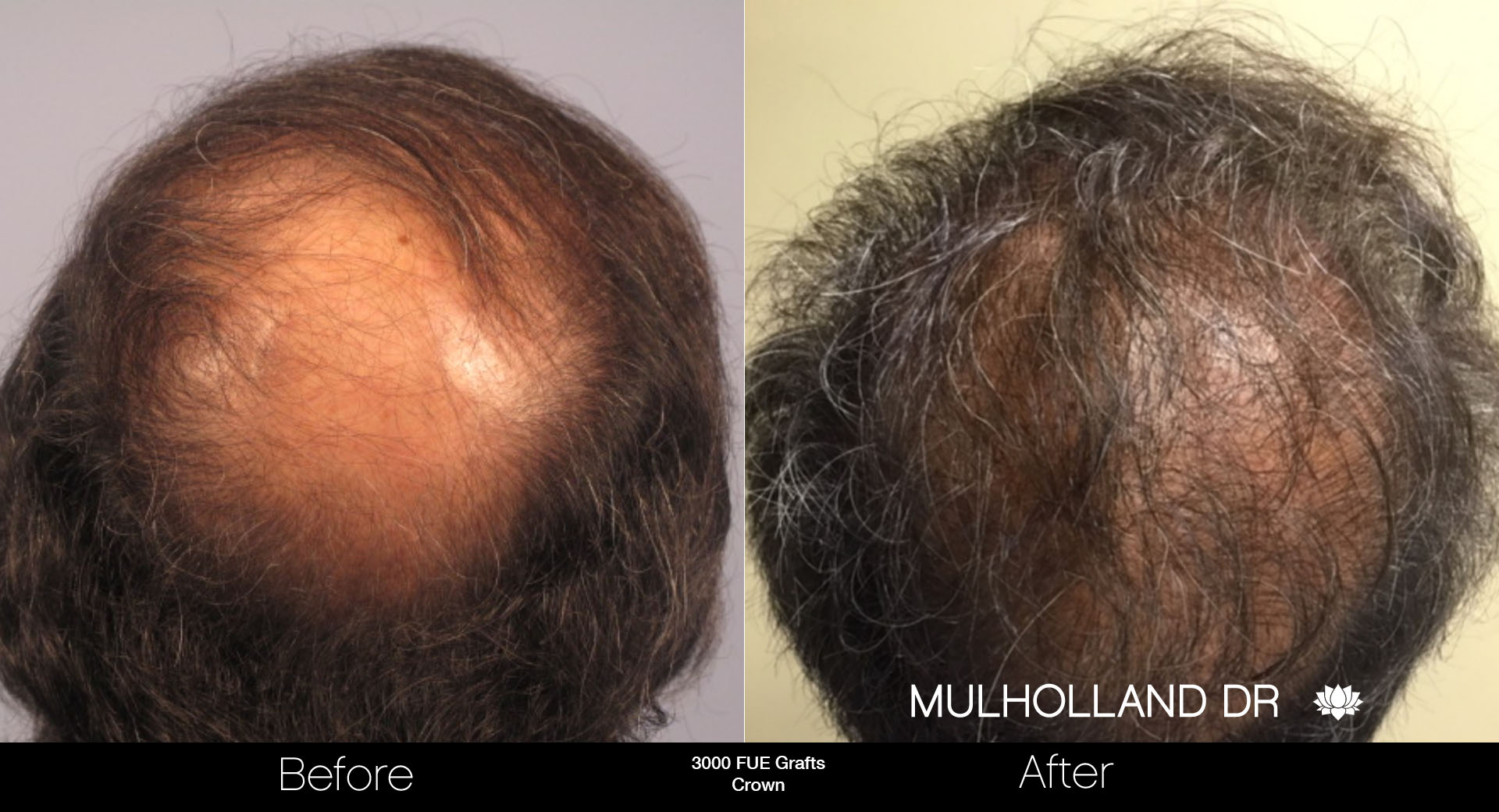 FUE Hair Male - Before and After Gallery – Photo 74