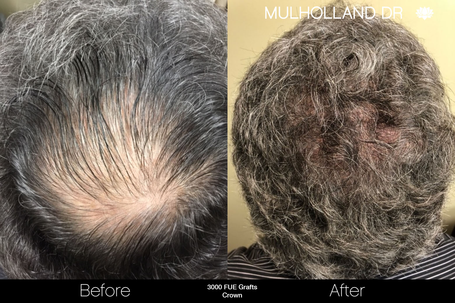 FUE Hair Male - Before and After Gallery – Photo 76