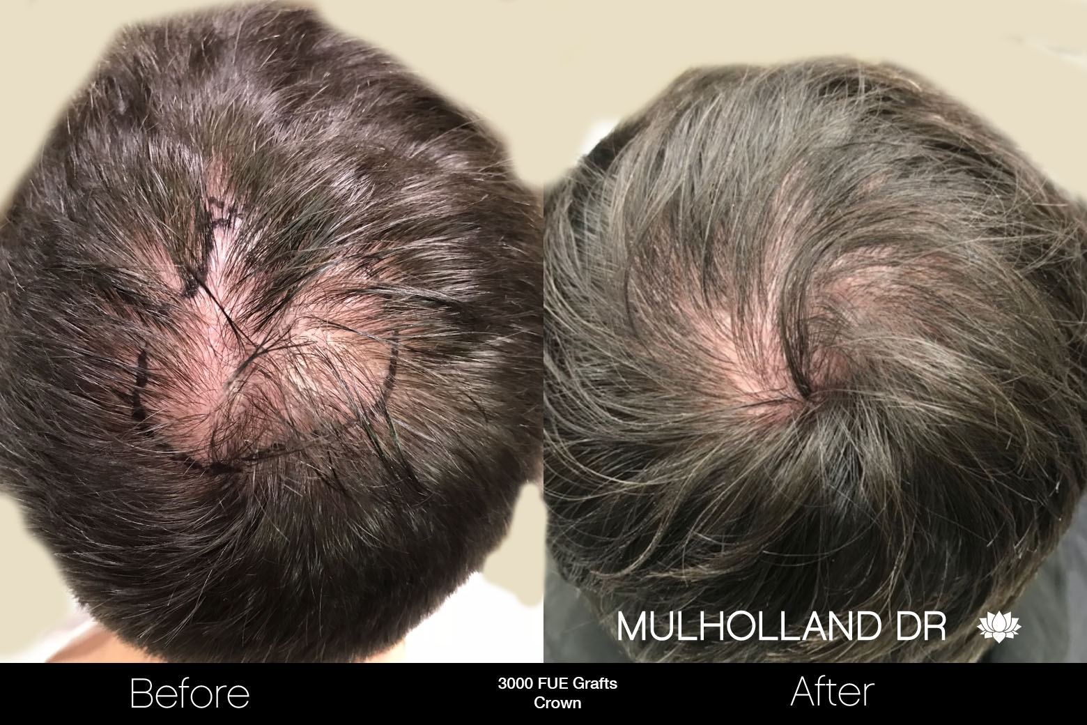 FUE Hair Male - Before and After Gallery – Photo 79