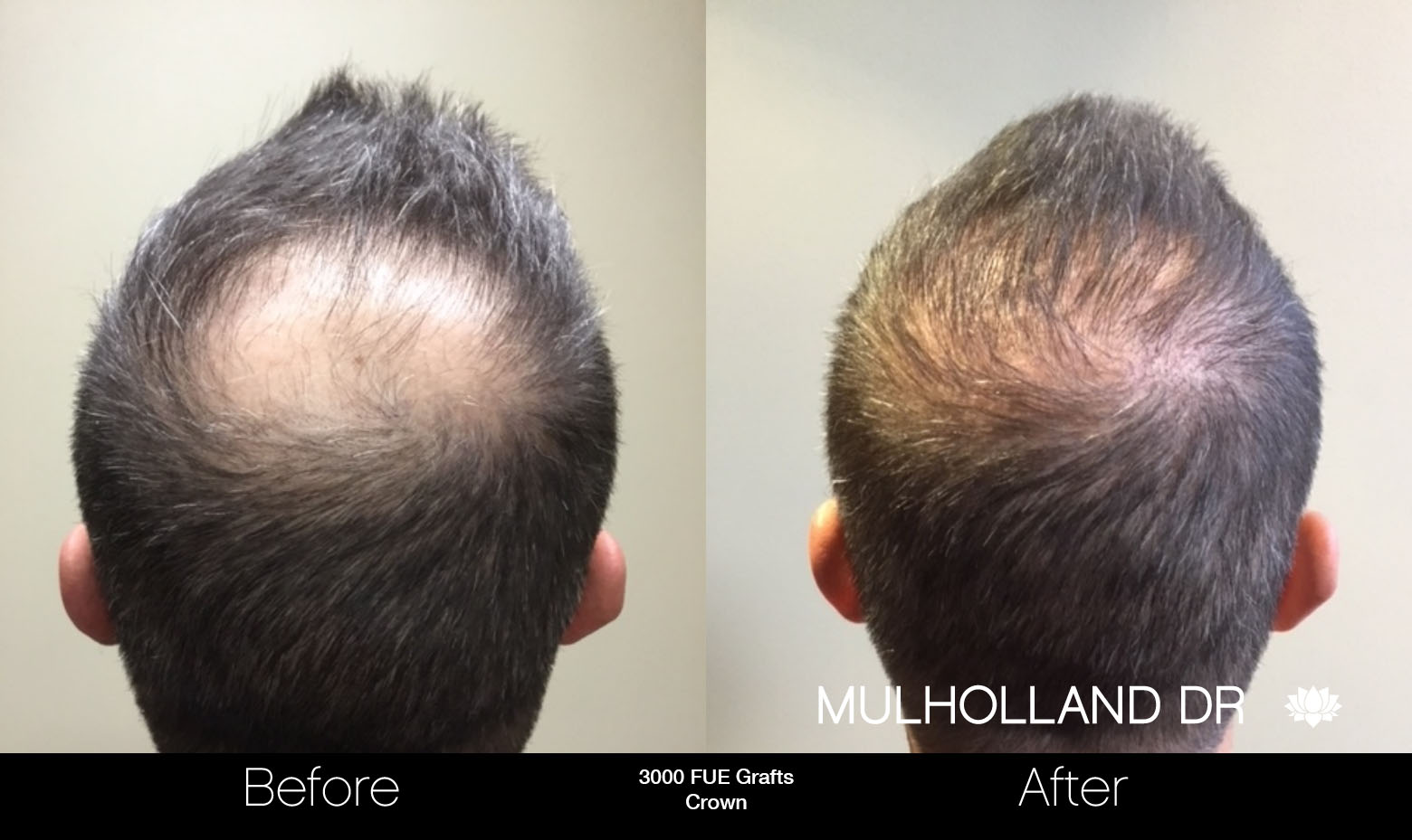 FUE Hair Male - Before and After Gallery – Photo 81