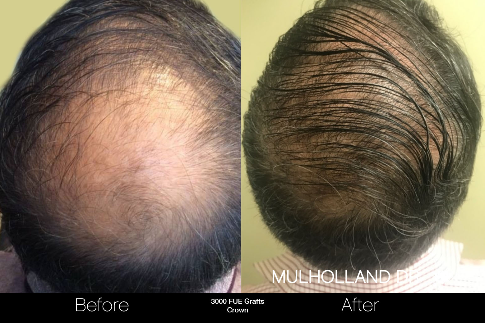 FUE Hair Male - Before and After Gallery – Photo 84