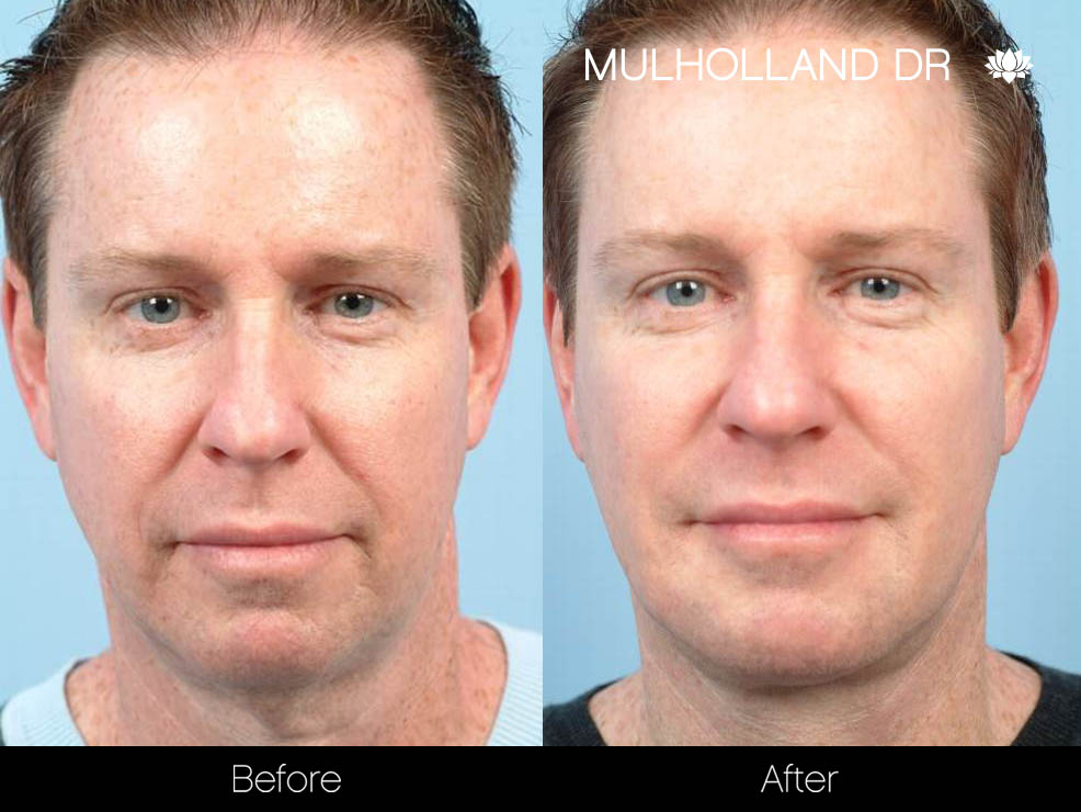 Liposuction - Before and After Gallery – Photo 96