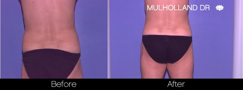 BodyTite Liposuction - Before and After Gallery – Photo 101