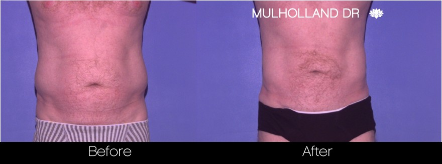 BodyTite Liposuction - Before and After Gallery – Photo 102