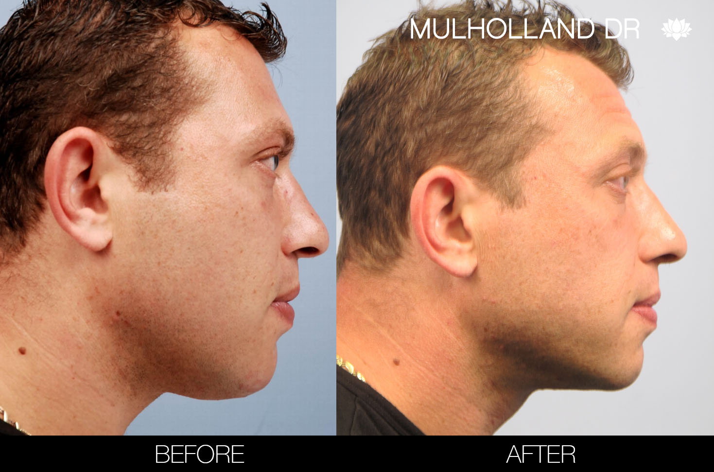 Liposuction - Before and After Gallery – Photo 102