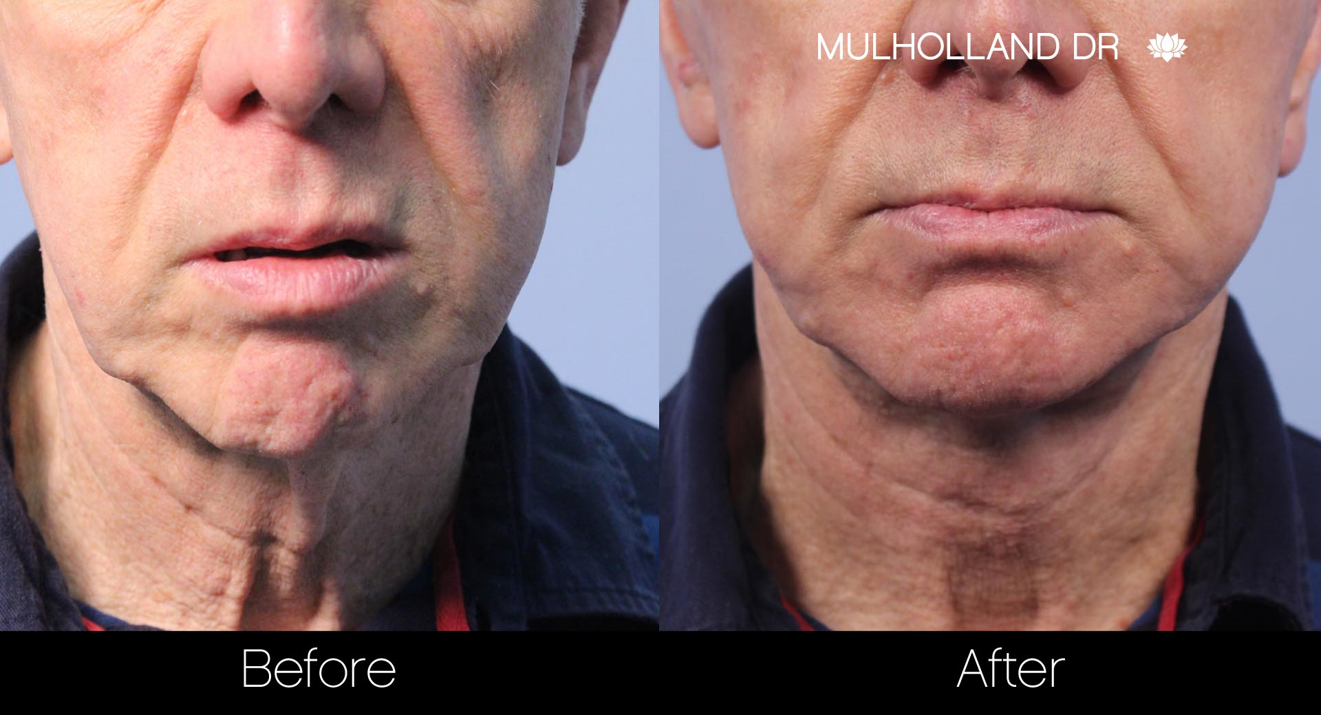 Liposuction - Before and After Gallery – Photo 105