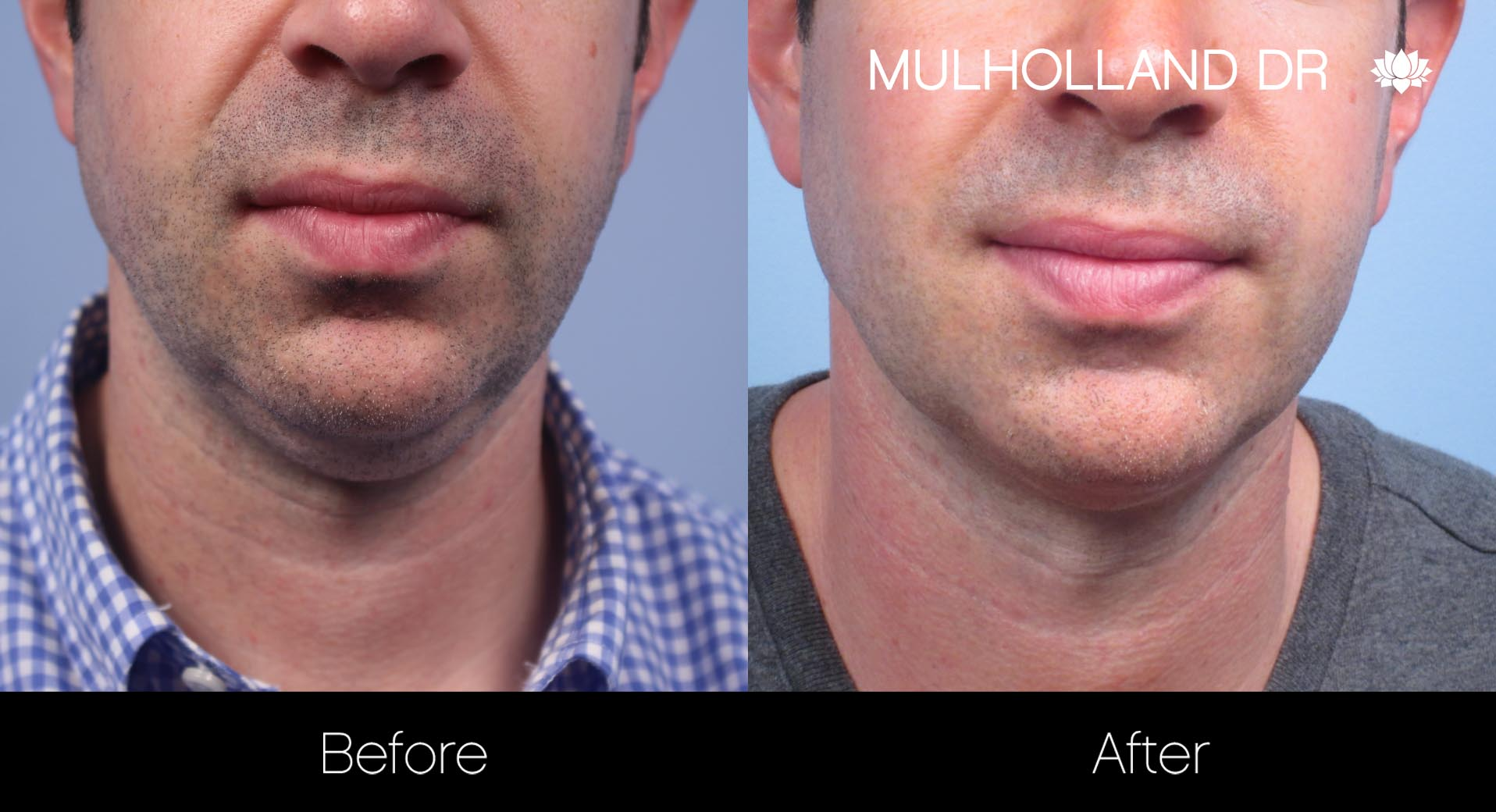 Liposuction - Before and After Gallery – Photo 110
