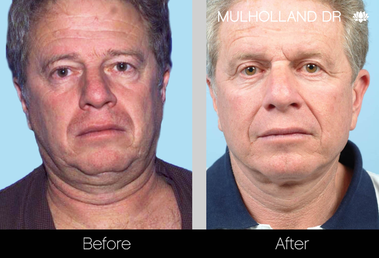 Liposuction - Before and After Gallery – Photo 115