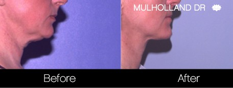 Liposuction - Before and After Gallery – Photo 119