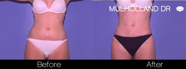 BodyTite Liposuction - Before and After Gallery – Photo 14