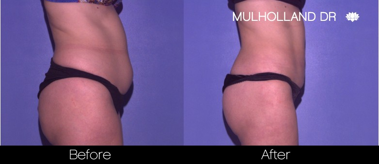 BodyTite Liposuction - Before and After Gallery – Photo 18