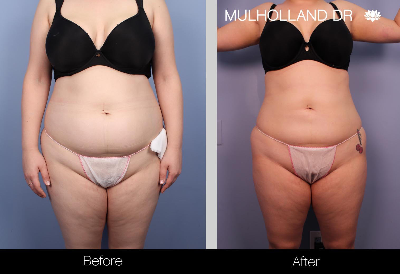 BodyTite Liposuction - Before and After Gallery – Photo 22