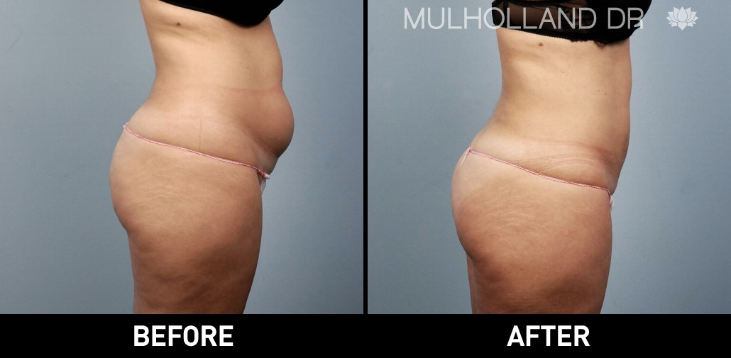 BodyTite Liposuction - Before and After Gallery – Photo 30