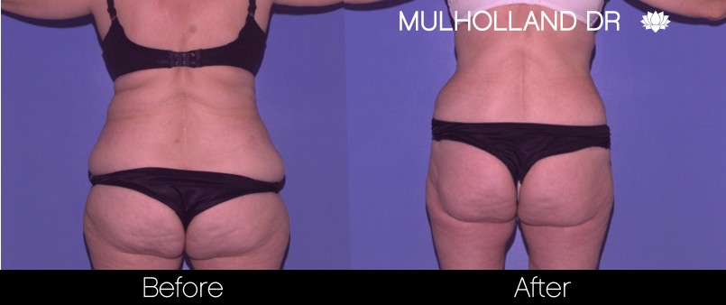 BodyTite Liposuction - Before and After Gallery – Photo 33