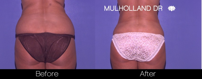 BodyTite Liposuction - Before and After Gallery – Photo 34