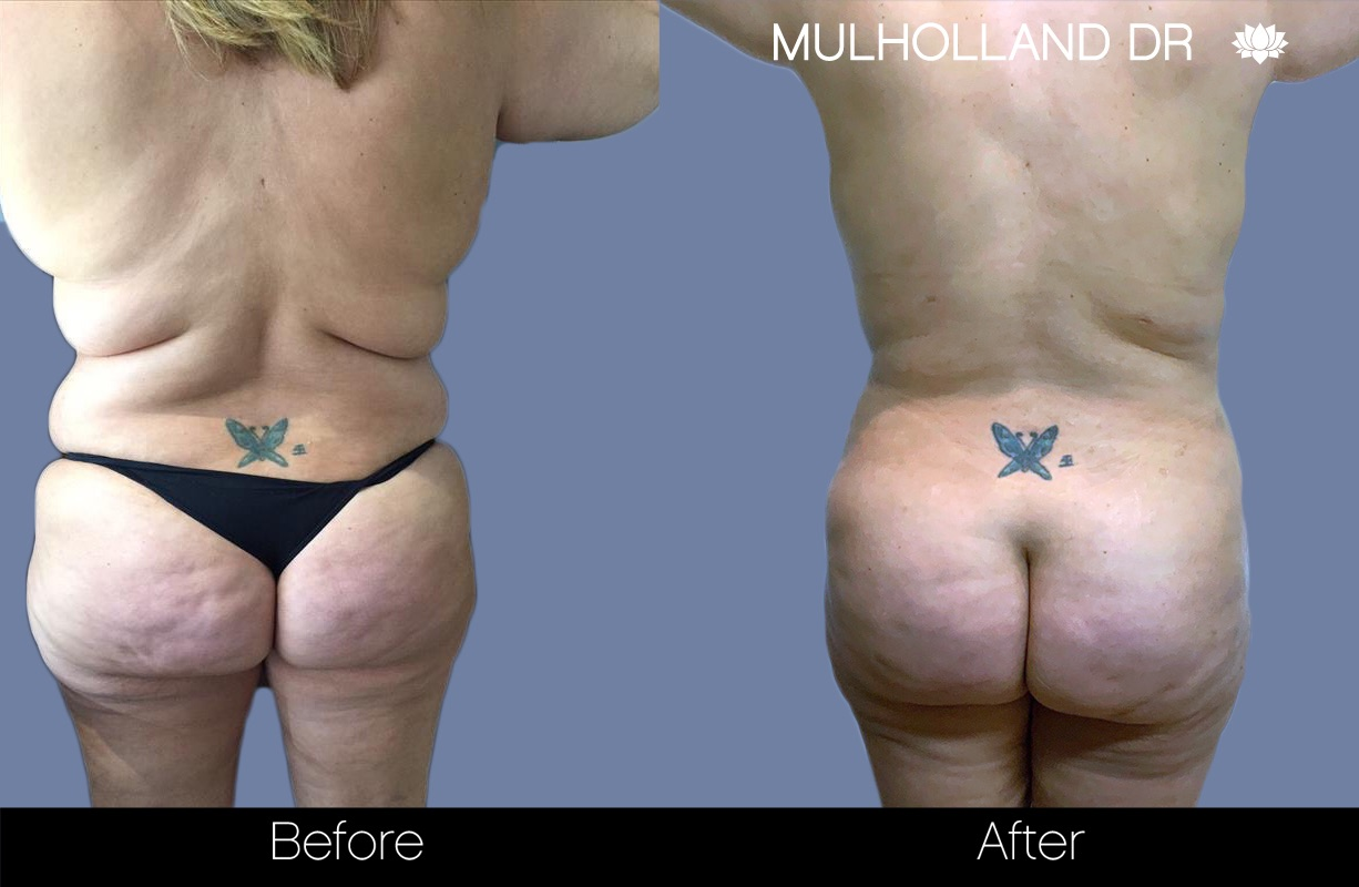 BodyTite Liposuction - Before and After Gallery – Photo 35