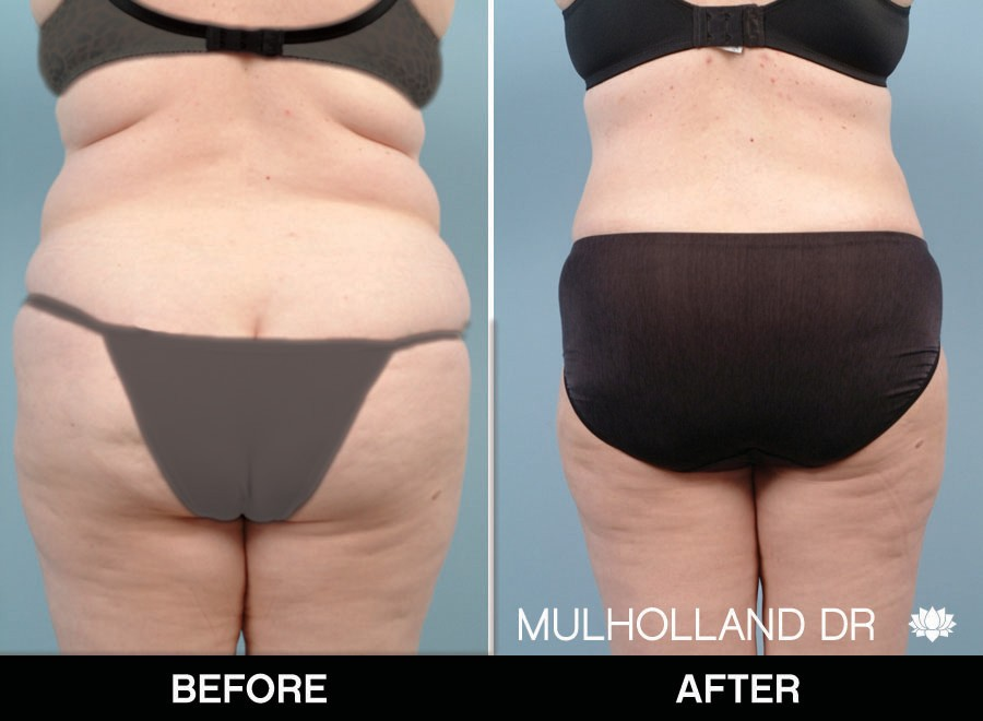 BodyTite Liposuction - Before and After Gallery – Photo 36
