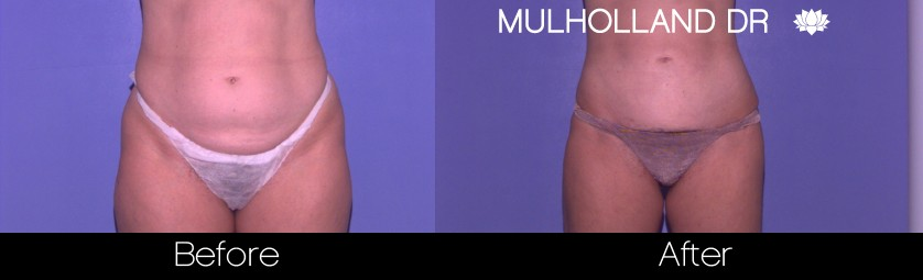 Liposuction - Before and After Gallery – Photo 37
