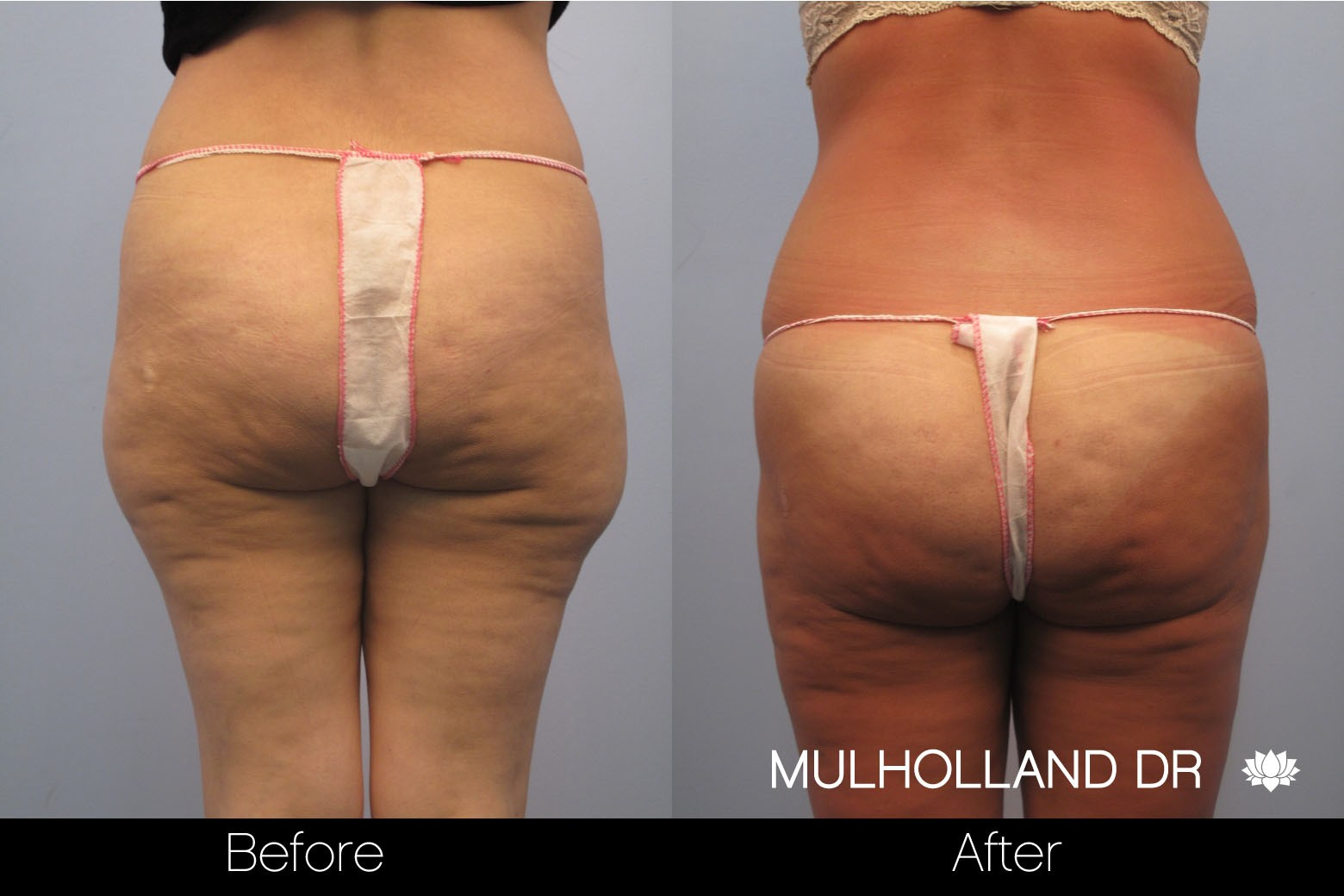 BodyTite Liposuction - Before and After Gallery – Photo 39