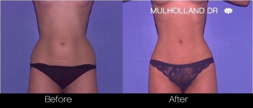 Liposuction - Before and After Gallery – Photo 41