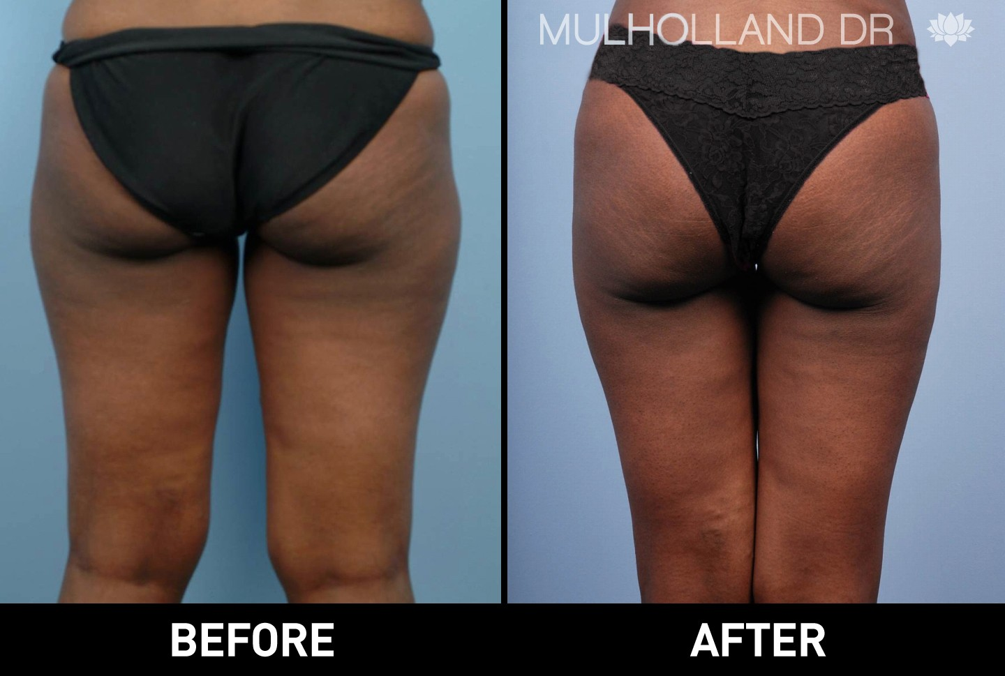 BodyTite Liposuction - Before and After Gallery – Photo 41